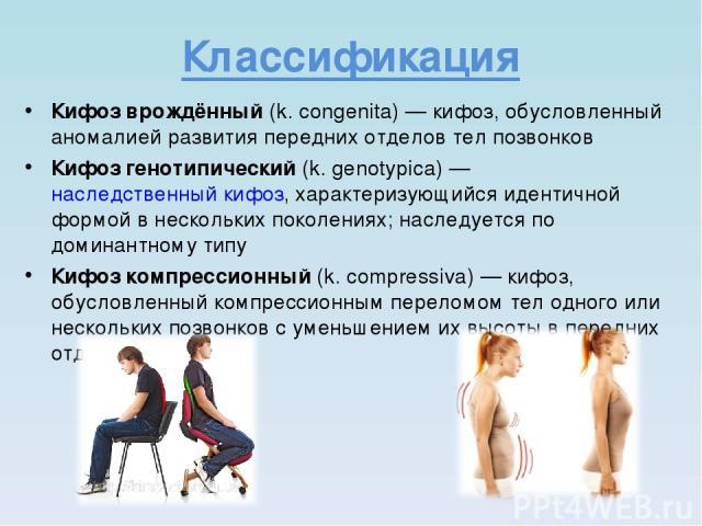 Классификация Кифоз врождённый (k. congenita)— кифоз, обусловленный аномалией развития передних отделов тел позвонков Кифоз генотипический (k. genotypica)— наследственный кифоз, характеризующийся идентичной формой в нескольких поколениях; наследуе…