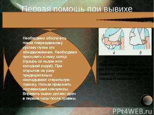Первая помощь при вывихе Иммобилизация верхней конечности при повреждении (вывих
