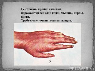 IV-степень, крайне тяжелая, поражаются все слои кожи, мышцы, нервы, кости. Требу