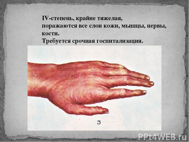 IV-степень, крайне тяжелая, поражаются все слои кожи, мышцы, нервы, кости. Требуется срочная госпитализация.