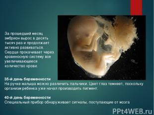 За прошедший месяц эмбрион вырос в десять тысяч раз и продолжает активно развива