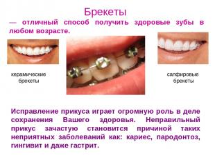 Брекеты — отличный способ получить здоровые зубы в любом возрасте. Исправление п