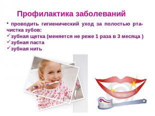 Профилактика заболеваний проводить гигиенический уход за полостью рта- чистка зу