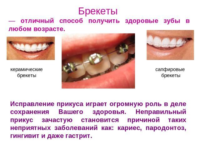 Брекеты — отличный способ получить здоровые зубы в любом возрасте. Исправление прикуса играет огромную роль в деле сохранения Вашего здоровья. Неправильный прикус зачастую становится причиной таких неприятных заболеваний как: кариес, пародонтоз, гин…
