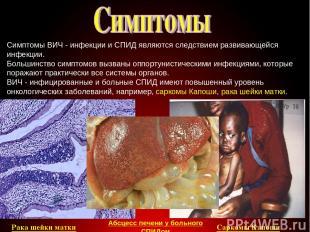 Симптомы ВИЧ - инфекции и СПИД являются следствием развивающейся инфекции. Больш