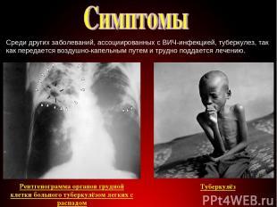 Среди других заболеваний, ассоциированных с ВИЧ-инфекцией, туберкулез, так как п