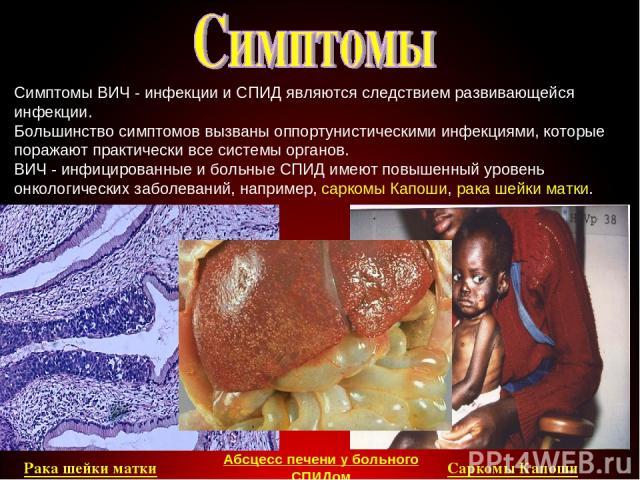 Симптомы ВИЧ - инфекции и СПИД являются следствием развивающейся инфекции. Большинство симптомов вызваны оппортунистическими инфекциями, которые поражают практически все системы органов. ВИЧ - инфицированные и больные СПИД имеют повышенный уровень о…