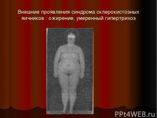 Внешние проявления синдрома склерокистозных яичников : ожирение, умеренный гипер