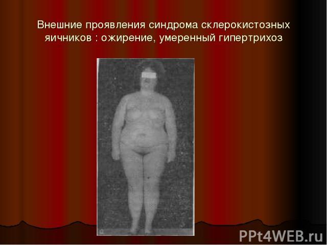Внешние проявления синдрома склерокистозных яичников : ожирение, умеренный гипертрихоз