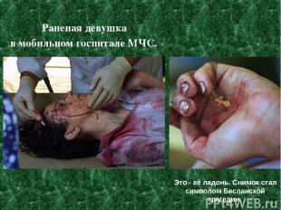 Раненая девушка в мобильном госпитале МЧС. Это - её ладонь. Снимок стал символом