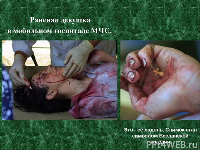 Раненая девушка в мобильном госпитале МЧС. Это - её ладонь. Снимок стал символом Бесланской трагедии.