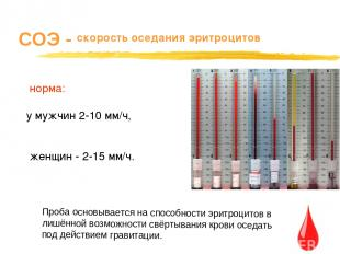СОЭ - скорость оседания эритроцитов норма: у мужчин 2-10 мм/ч, женщин - 2-15 мм/