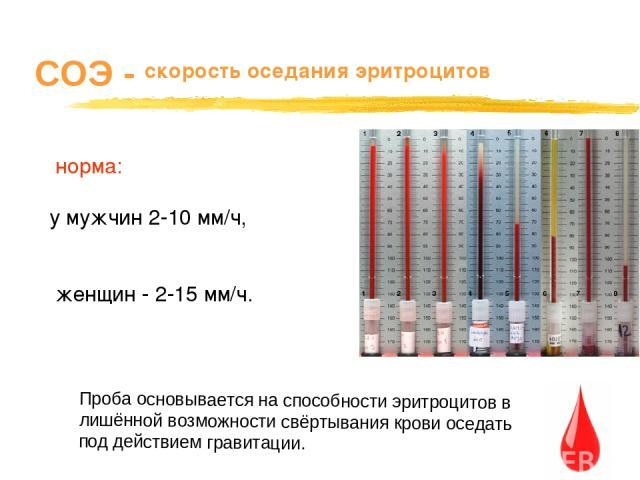 СОЭ - скорость оседания эритроцитов норма: у мужчин 2-10 мм/ч, женщин - 2-15 мм/ч. Проба основывается на способности эритроцитов в лишённой возможности свёртывания крови оседать под действием гравитации.