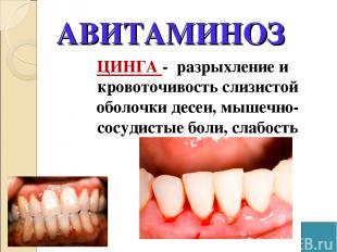 АВИТАМИНОЗ ЦИНГА - разрыхление и кровоточивость слизистой оболочки десен, мышечн