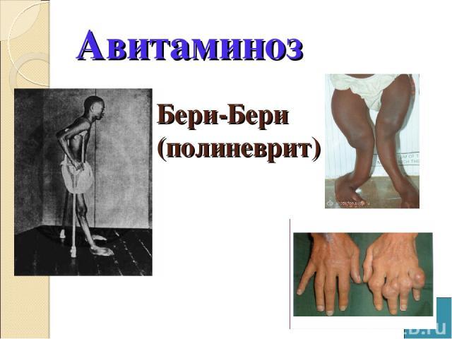 Авитаминоз Бери-Бери (полиневрит)
