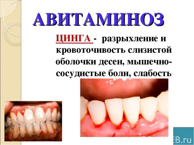 АВИТАМИНОЗ ЦИНГА - разрыхление и кровоточивость слизистой оболочки десен, мышечно-сосудистые боли, слабость