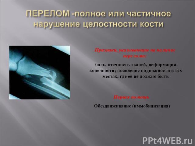 Признаки, указывающие на наличие перелома: боль, отечность тканей, деформация конечности; появление подвижности в тех местах, где её не должно быть Первая помощь Обездвиживание (иммобилизация)