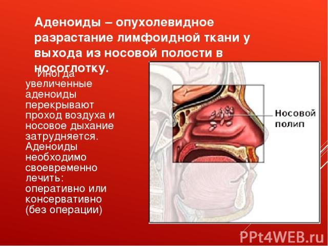 Аденоиды – опухолевидное разрастание лимфоидной ткани у выхода из носовой полости в носоглотку. Иногда увеличенные аденоиды перекрывают проход воздуха и носовое дыхание затрудняется. Аденоиды необходимо своевременно лечить: оперативно или консервати…