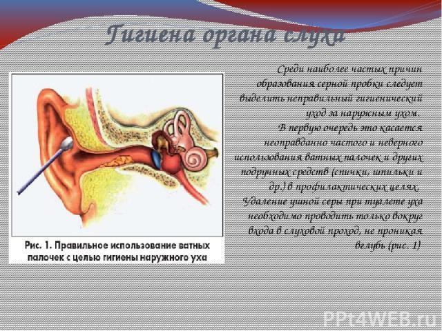 Гигиена органа слуха Среди наиболее частых причин образования серной пробки следует выделить неправильный гигиенический уход за наружным ухом. В первую очередь это касается неоправданно частого и неверного использования ватных палочек и других подру…