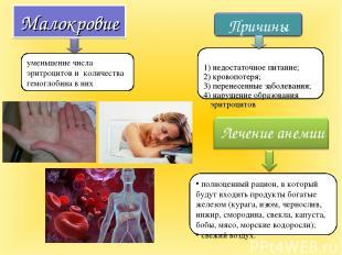 Малокровие уменьшение числа эритроцитов и количества гемоглобина в них полноценн