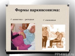 Формы паркинсонизма: акинетико – ригидная смешанная