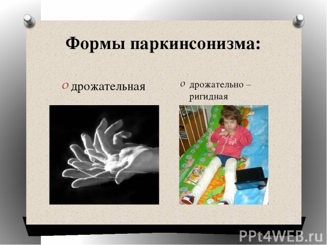 Формы паркинсонизма: дрожательная дрожательно – ригидная