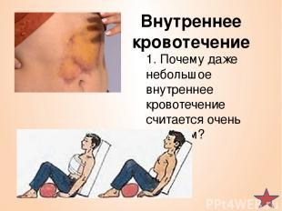 Внутреннее кровотечение 1. Почему даже небольшое внутреннее кровотечение считает