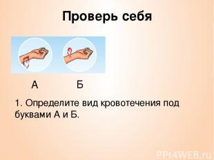 Проверь себя 1. Определите вид кровотечения под буквами А и Б. А Б