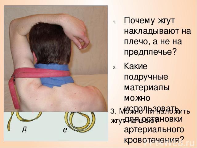 Почему жгут накладывают на плечо, а не на предплечье? Какие подручные материалы можно использовать для остановки артериального кровотечения? 3. Можно ли наложить жгут на шею?