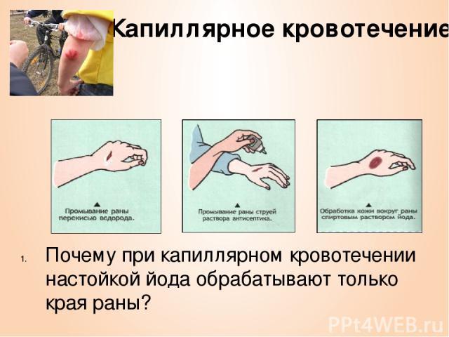 Капиллярное кровотечение Почему при капиллярном кровотечении настойкой йода обрабатывают только края раны?