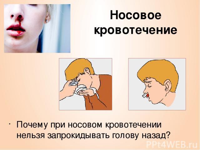 Носовое кровотечение Почему при носовом кровотечении нельзя запрокидывать голову назад?