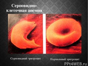 Серповидно-клеточная анемия Серповидный эритроцит Нормальный эритроцит