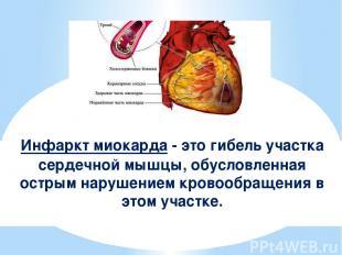 Инфаркт миокарда - это гибель участка сердечной мышцы, обусловленная острым нару