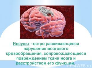 Инсульт - остро развивающееся нарушение мозгового кровообращения, сопровождающее