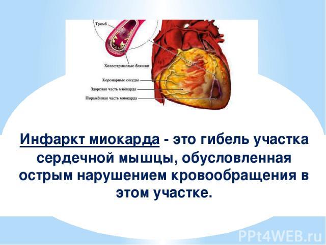 Инфаркт миокарда - это гибель участка сердечной мышцы, обусловленная острым нарушением кровообращения в этом участке.