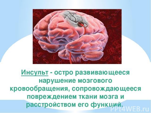Инсульт - остро развивающееся нарушение мозгового кровообращения, сопровождающееся повреждением ткани мозга и расстройством его функций.