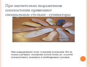 При значительно выраженном плоскостопии применяют специальные стельки - супинато