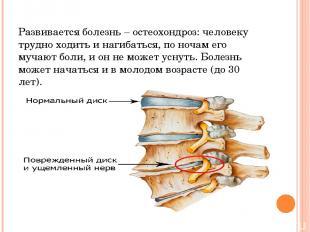 Развивается болезнь – остеохондроз: человеку трудно ходить и нагибаться, по ноча