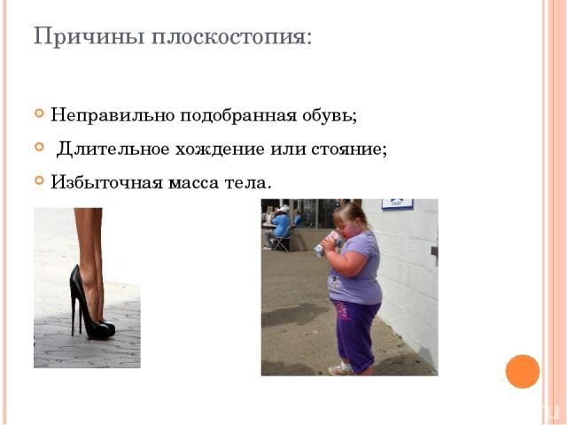 Причины плоскостопия: Неправильно подобранная обувь; Длительное хождение или стояние; Избыточная масса тела.