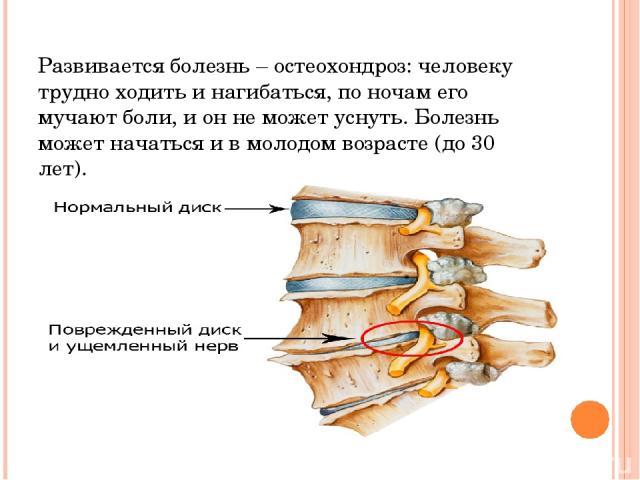 Развивается болезнь – остеохондроз: человеку трудно ходить и нагибаться, по ночам его мучают боли, и он не может уснуть. Болезнь может начаться и в молодом возрасте (до 30 лет).