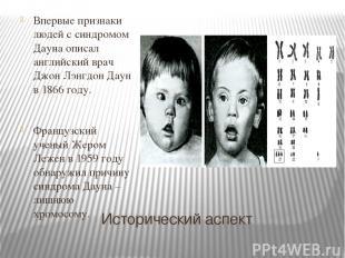 Исторический аспект Впервые признаки людей с синдромом Дауна описал английский в