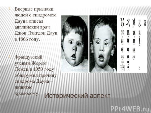 Исторический аспект Впервые признаки людей с синдромом Дауна описал английский врач Джон Лэнгдон Даун в 1866 году. Французский ученый Жером Лежен в 1959 году обнаружил причину синдрома Дауна – лишнюю хромосому.