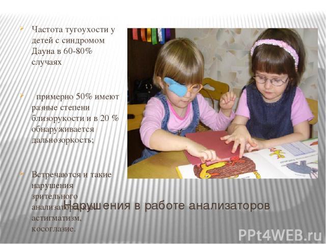 Нарушения в работе анализаторов Частота тугоухости у детей с синдромом Дауна в 60-80% случаях примерно 50% имеют разные степени близорукости и в 20 % обнаруживается дальнозоркость; Встречаются и такие нарушения зрительного анализатора, как астигмати…