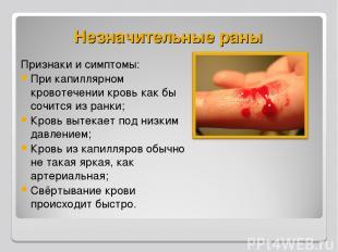 Незначительные раны Признаки и симптомы: При капиллярном кровотечении кровь как
