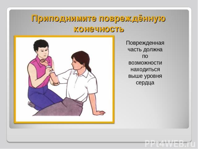 Приподнимите повреждённую конечность Поврежденная часть должна по возможности находиться выше уровня сердца