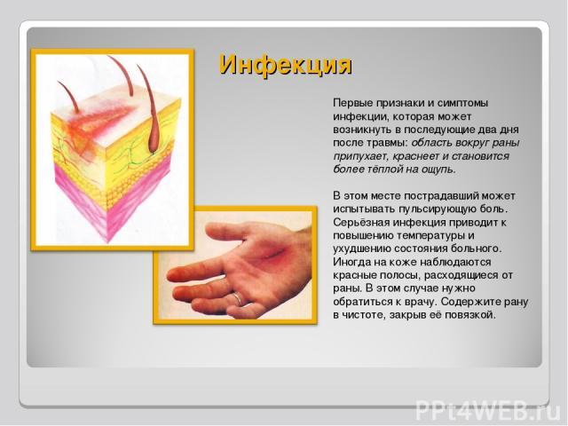 Инфекция Первые признаки и симптомы инфекции, которая может возникнуть в последующие два дня после травмы: область вокруг раны припухает, краснеет и становится более тёплой на ощупь. В этом месте пострадавший может испытывать пульсирующую боль. Серь…