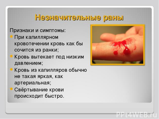 Незначительные раны Признаки и симптомы: При капиллярном кровотечении кровь как бы сочится из ранки; Кровь вытекает под низким давлением; Кровь из капилляров обычно не такая яркая, как артериальная; Свёртывание крови происходит быстро.