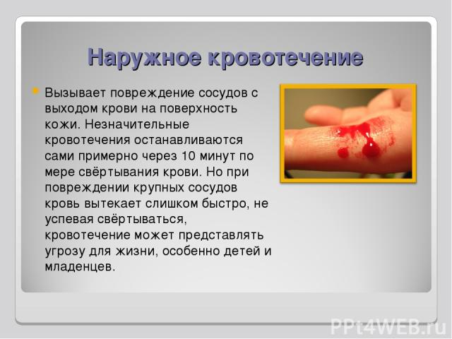Наружное кровотечение Вызывает повреждение сосудов с выходом крови на поверхность кожи. Незначительные кровотечения останавливаются сами примерно через 10 минут по мере свёртывания крови. Но при повреждении крупных сосудов кровь вытекает слишком быс…