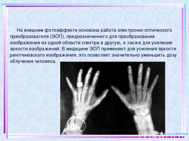 На внешнем фотоэффекте основана работа электронно-оптического преобразователя (ЭОП), предназначенного для преобразования изображения из одной области спектра в другую, а также для усиления яркости изображений. В медицине ЭОП применяют для усиления я…
