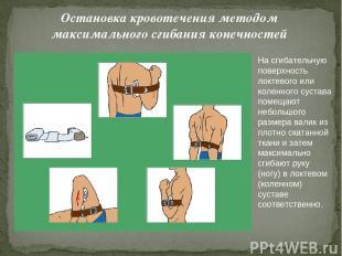 Остановка кровотечения методом максимального сгибания конечностей На сгибательну